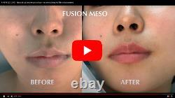 Lips Hyaluron Stylo Ampoule Kit Gun Hyaluronique Acide Mésothérapie Sérum 0,3